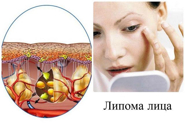 Папиллома на щеке внутри