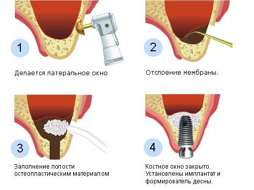 Проведение открытого синус лифтинга особенности операции и реабилитационного периода