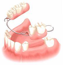 Какие зубы лучше вставить спереди